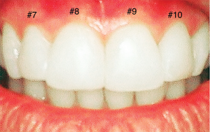 Before (top): The patient disliked the rotation of her teeth and the discrepancy in size and shape. Dentist evaluation: #7 rotated outward to the right, #8 rotated toward middle, #9 rotated toward middle, #10 rotated outward to the left. After (bottom): Composite veneers placed on four front teeth make them look straight, aesthetic and more evenly shaped.