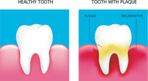 TEETH plaque
